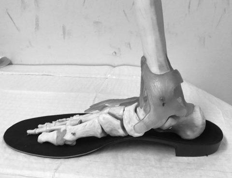 custom orthotic foot brace
